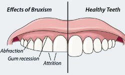help for bruxism and grinding in ottawa