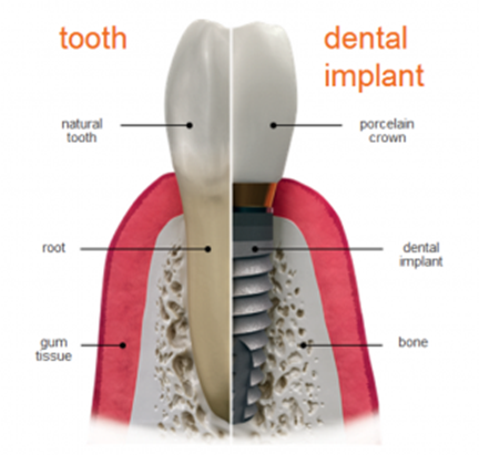 ottawa dental implants