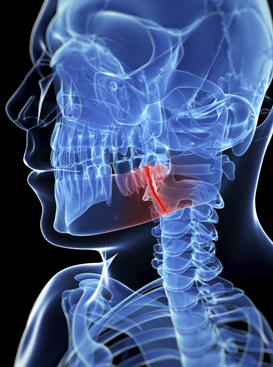 tmj headache treatment ottawa ontario