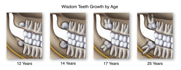 wisdom teeth extraction ottawa dental office